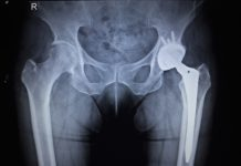X-ray scan of hip joints