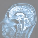 Traumatic Brain Injury Lawyer Philadelphia, PA