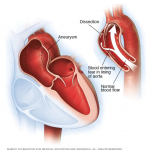 Aortic Dissection Injury